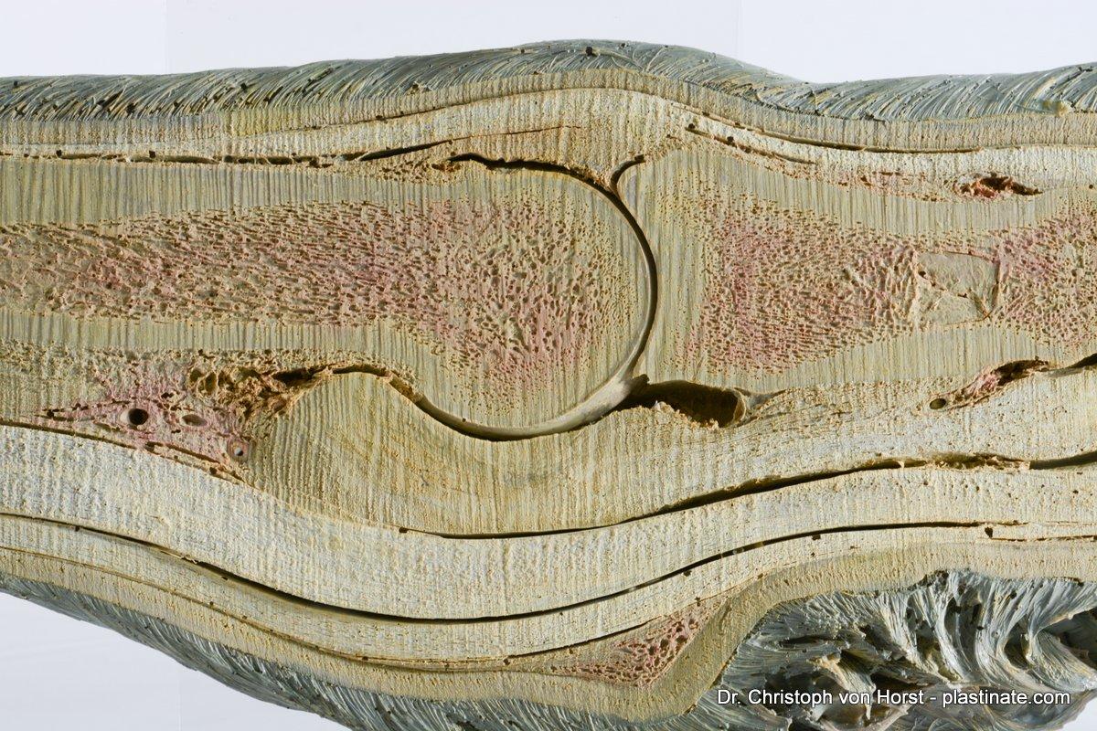 Horse_hoof_anatomy_specimen_large-3